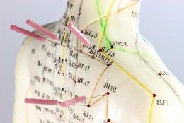 Bild - Akupunktur